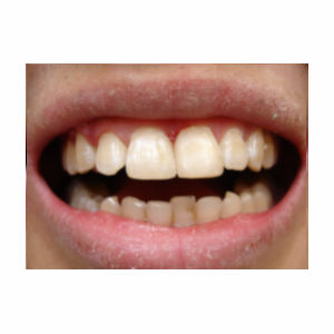 Chipped teeth treated with Dental Bonding after 3696681