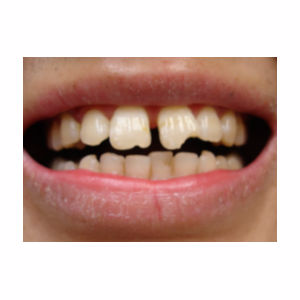 Chipped teeth treated with Dental Bonding before 3696681