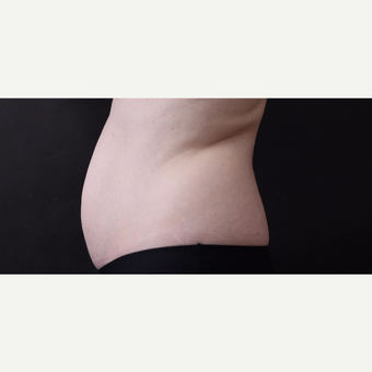 46 year old woman treated with CoolSculpting before 3168884