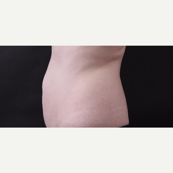 46 year old woman treated with CoolSculpting after 3168884