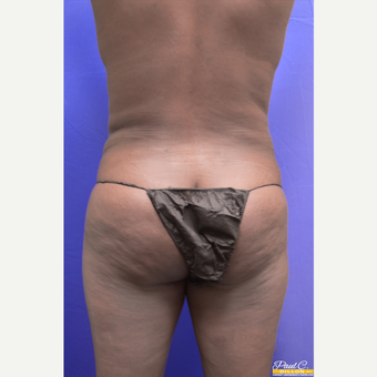 35-44 year old woman treated with Liposuction after 3576923