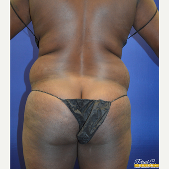35-44 year old woman treated with Liposuction before 3576923