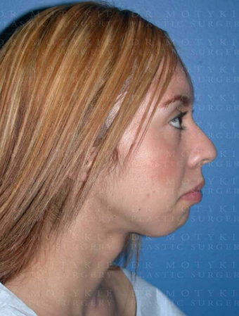 Chin Surgery before 1252673