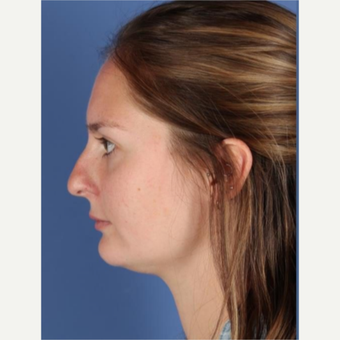 25-34 year old woman treated with Rhinoplasty before 3788676