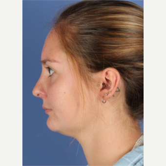 25-34 year old woman treated with Rhinoplasty after 3788676