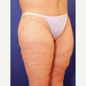 61 year old woman with a lower Body Lift after 3541769