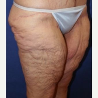 61 year old woman with a lower Body Lift before 3541769