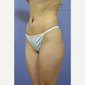 18-24 year old woman treated with Liposuction after 3421364
