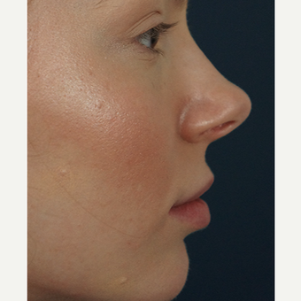 18-24 year old woman treated with Restylane Silk after 3245004