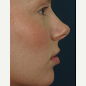 18-24 year old woman treated with Restylane Silk before 3245004