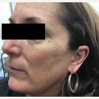 45-54 year old woman treated with IPL