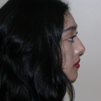 18-24 year old woman treated with Rhinoplasty before 3493343
