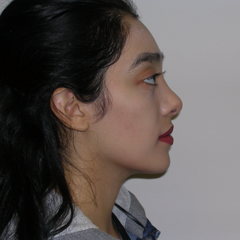 18-24 year old woman treated with Rhinoplasty after 3493343