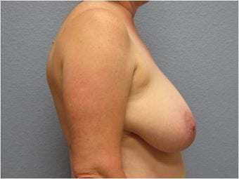 55-64 year old woman treated with Breast Lift 3736926