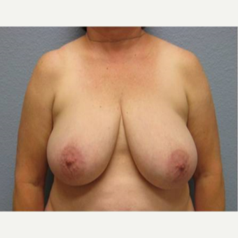 55-64 year old woman treated with Breast Lift before 3736926