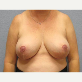 55-64 year old woman treated with Breast Lift after 3736926