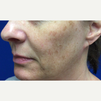 Halo Laser Treatment for this 51 Year Old Woman before 3241445