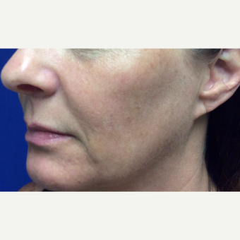 Halo Laser Treatment for this 51 Year Old Woman after 3241445