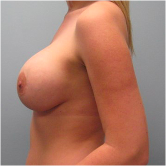 22 year old woman treated with Breast Augmentation after 3468241