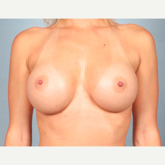 25-34 year old woman treated with Breast Augmentation after 3245260