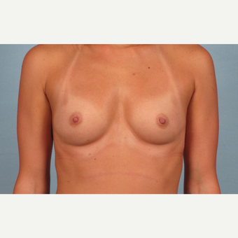 25-34 year old woman treated with Breast Augmentation before 3245260