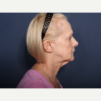 65-74 year old woman treated with Neck Lift (view 2 of 2) before 3259227