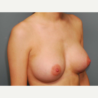 25 y/o Inframammary Sub Muscular Breast Augmentation after 3066073