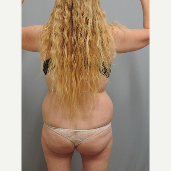 45-54 year old woman treated with Smart Lipo before 3448754