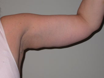 50 year old female for armlift after 1216851