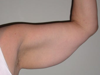 50 year old female for armlift before 1216851