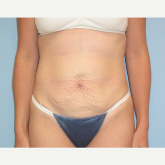 38 year old woman treated with Tummy Tuck before 3220177