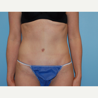 38 year old woman treated with Tummy Tuck after 3220177