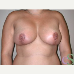 Breast Lift with Implants after 3373393
