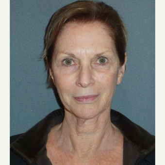 65-74 year old woman treated with Facelift before 3763118