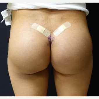 35-44 year old woman treated with 548cc Silicone Butt Implants for her Butt Augmentation
