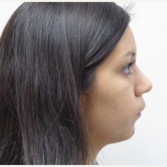 19 year old female treated with Orthognathic Surgery before 2181741