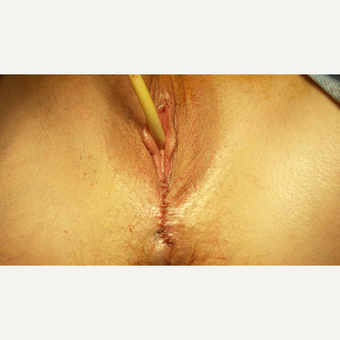 Vaginal Rejuvenation: Vaginoplasty, Pelvic Floor Reconstruction, Muscle Tightening, Hernia Repair after 1599019