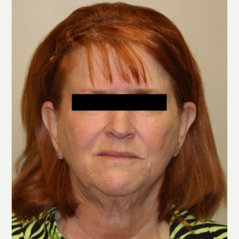 65-74 year old woman treated with Facelift, Necklift, Browlift before 3215266