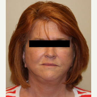 65-74 year old woman treated with Facelift, Necklift, Browlift after 3215266