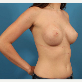 18-24 year old woman treated with Anatomically Shaped Breast Implants after 3244574