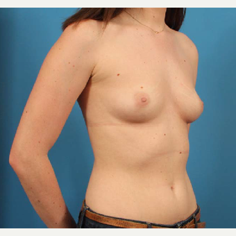 18-24 year old woman treated with Anatomically Shaped Breast Implants before 3244574
