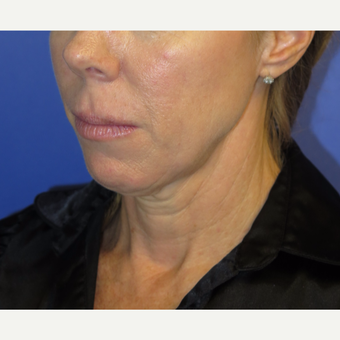 47 year old woman treated with Neck Lift before 3054230