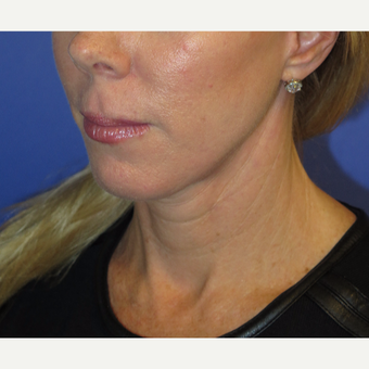 47 year old woman treated with Neck Lift after 3054230
