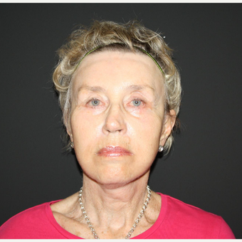 65-74 year old woman treated with Facelift after 3033469
