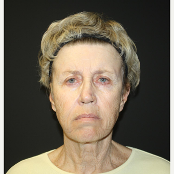 65-74 year old woman treated with Facelift before 3033469