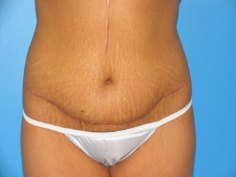 28 yr old woman with body lift after 1038463