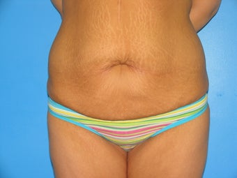 28 yr old woman with body lift before 1038463