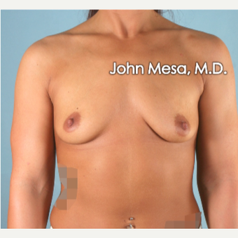 18-24 year old woman treated with Breast Augmentation before 3266886