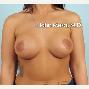 18-24 year old woman treated with Breast Augmentation after 3266886