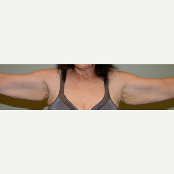 52 year old woman treated with Arm Lift before 3736618